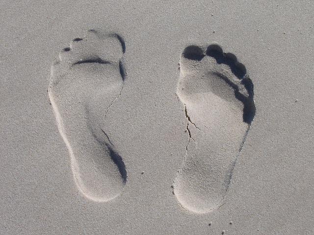 עור קשה בכפות הרגליים