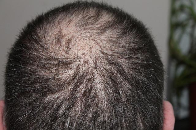 אזור תורם השתלת שיער
